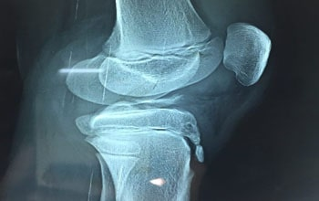 Fracture Fixation